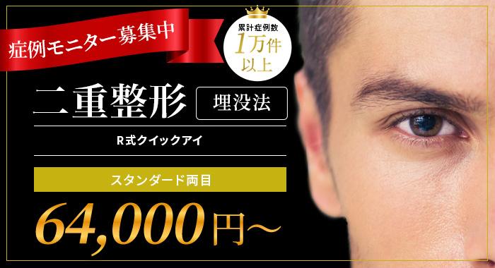 症例モニター募集中 二重整形 埋没法R式クイックイ スタンダード両目¥64,000~