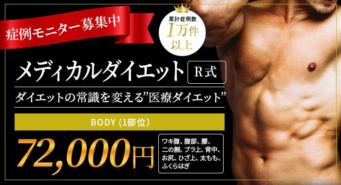"""症例モニター募集中 メディカルダイエットR式 ダイエットの常識を変える""""医療ダイエット"""" BODY (1部位)¥72,000 ワキ腹、腹部、、腰、二の腕、ブラ上、背中、お尻、ひざ上、太もも、ふくらはぎ"""