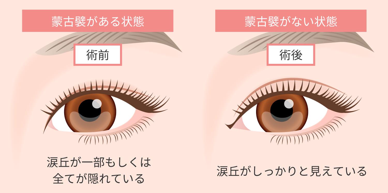 横幅 を 広げる 目 の 目の横幅を広げる方法を教えてください。